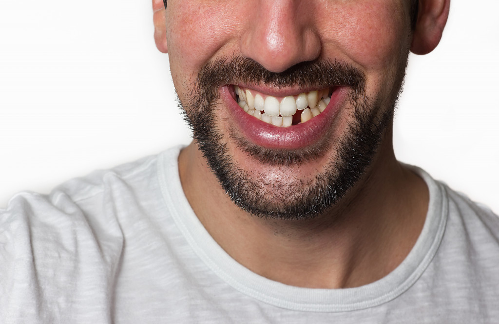 chipped tooth from trauma